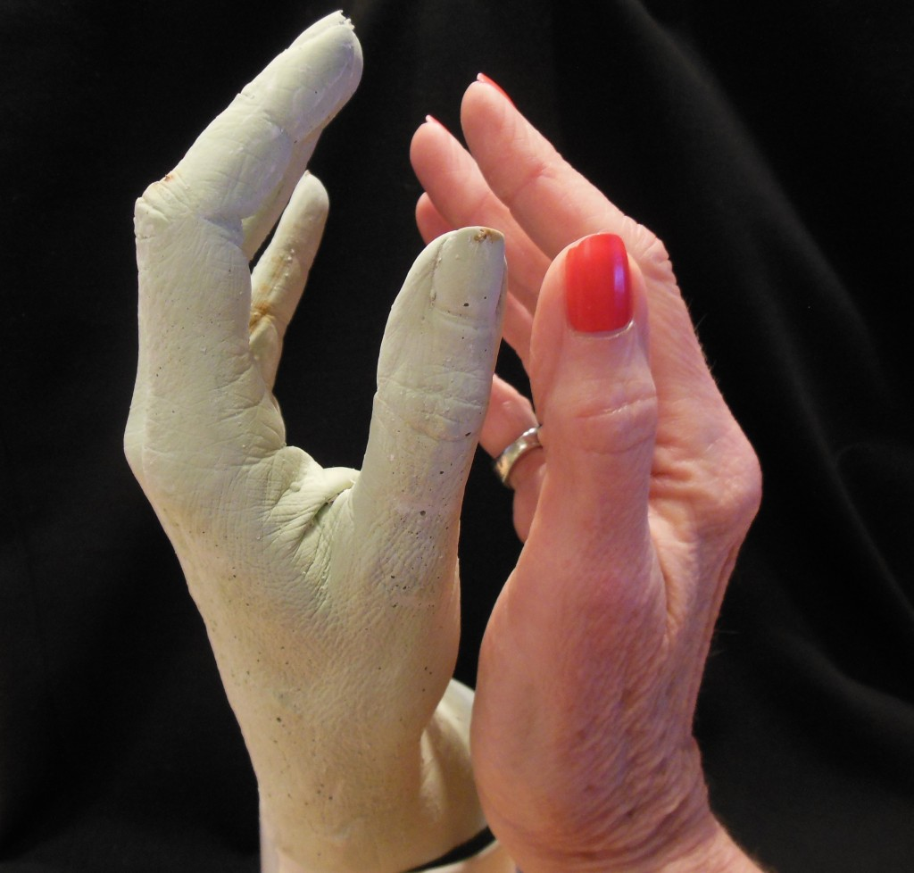 Right Hand and Cast of Left Hand